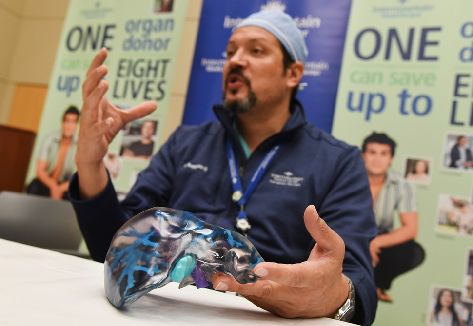 (Francisco Kjolseth | The Salt Lake Tribune) Transplant surgeon Manuel Rodriguez-Davalos, MD, medical director of Intermountain Healthcare's Living Donor Liver Transplant Program discusses a recent surgery where Brandon Finlayson, donated part of his liver to his mother Gwen in the first ever left lobe living liver transplant in Utah. A 3-D printed model of the living donor's liver was created as reference before and during the surgery by transplant team.