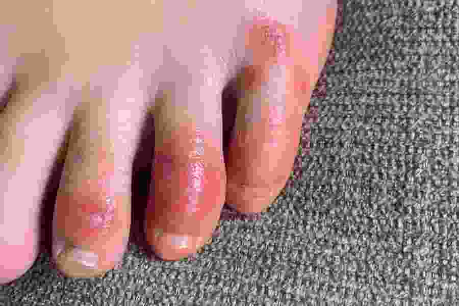 'COVID toes,' other rashes are the latest rare-but-possible signs of the coronavirus