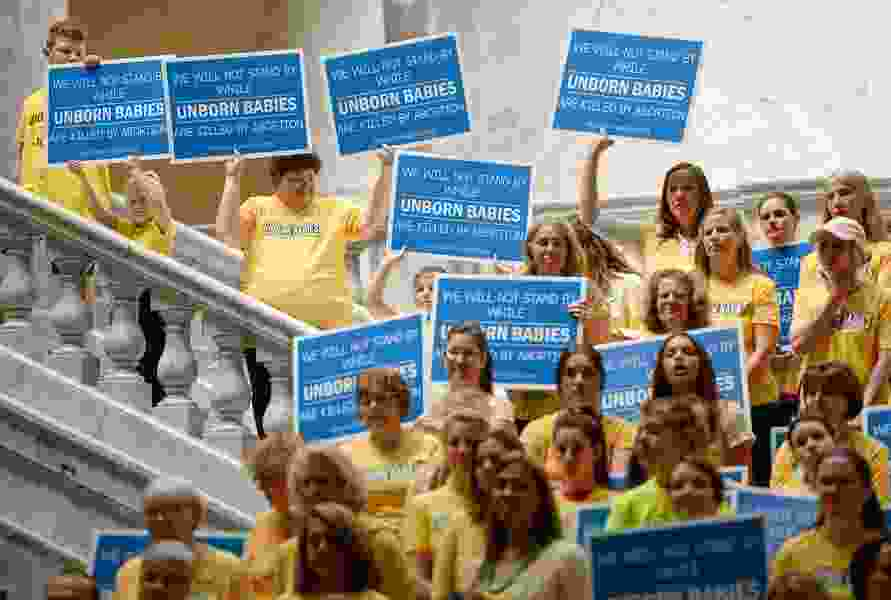 Utah could charge for mandated pre-abortion ultrasounds under new bill language