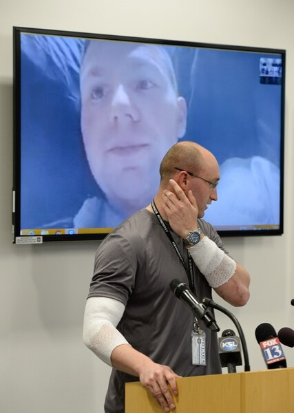 (Francisco Kjolseth | The Salt Lake Tribune) Officer Cade Bradshaw describes some of the burns he sustained as fellow officer Robert Jackson, appearing via video, recovers at the University hospital burn unit. Both officers were injured while responding to a call on April 5, 2018, when a man entered a Chevron gas station store and doused himself with gasoline. As the officers tried to get a lighter from the manÕs hand, the man lit himself on fire.