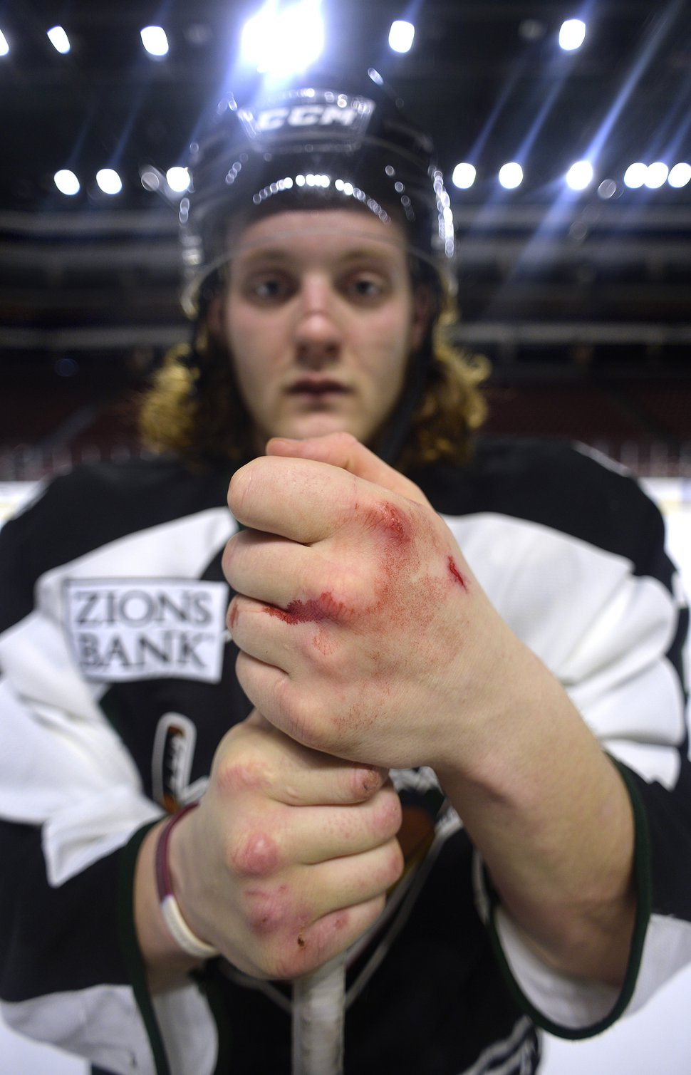 Scott Sommerdorf   The Salt Lake Tribune Utah Grizzlies hockey player Travis Howe poses for a portrait with his knuckles bleeding after practice, Thursday, March 2, 2017.