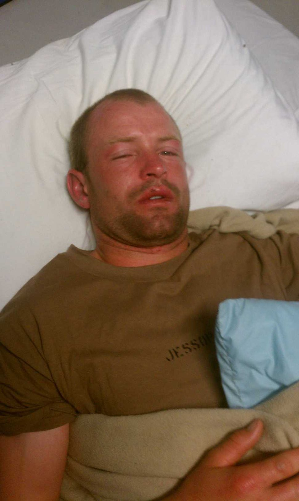 (Photo courtesy of Marty Jessop) Marty Jessop lays in a bed to recover from Navy SEAL training in 2011 or 2012.